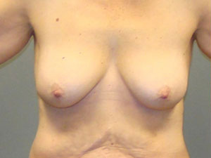 Breast Lift Before and After Pictures Savannah, GA