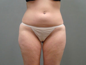 Liposuction Before and After Pictures Savannah, GA