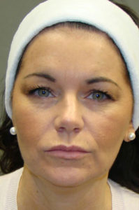 Dermal Fillers & Injectables Before and After Pictures Savannah, GA