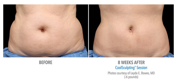 CoolSculpting® Before and After Pictures Savannah, GA