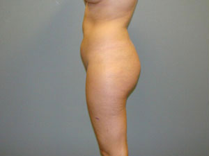 Brazilian Butt Lift Before and After Pictures Savannah, GA