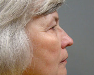 Eyelid Surgery Before and After Pictures Savannah, GA
