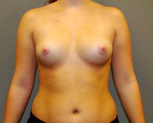 Breast Augmentation Before and After Pictures Savannah, GA