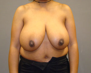 Breast Reduction Before and After Pictures Savannah, GA